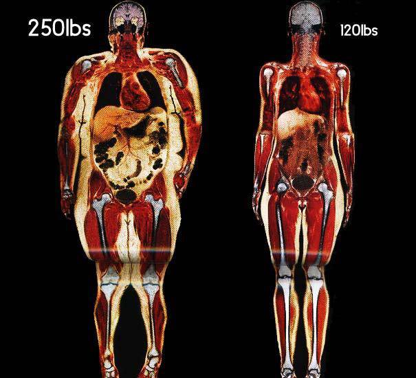 obesidad y paleo