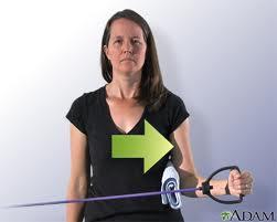Rotación externa brazo